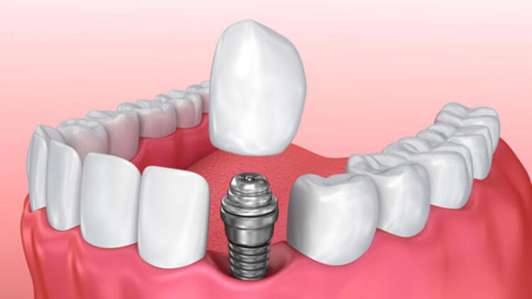 Diş İmplant